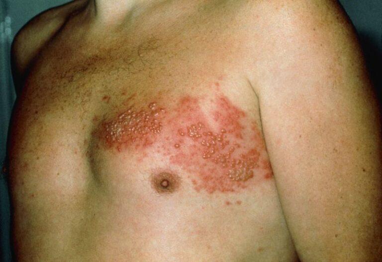 Fuoco di Sant'Antonio o Herpes Zoster: cause, sintomi e rimedi